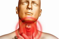 Лікування хвороб горла коралом